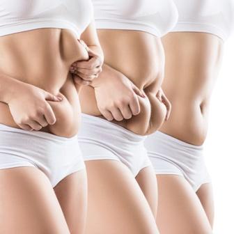 Sorisa Impact Ultraschall Kavitation bekämpft Schlaffe Haut und Haut mit Cellulite, stärkt das Bindegewebe, strafft und glättet die Haut, Sorisa Impact Ultraschall-Kavitation, Figurformung mit Ultraschall, Fettabbau, Fettreduktion, Fettentfernung, Fett weg mit Ultraschall, Figurkorrektur und Umfangreduktion, Cellulite- und Bindegewebsstraffung, Körperstraffung, Anti-Cellulite Behandlung, Orangenhaut, Straffung, schlaffe Haut nach Schwangerschaft, Bodyforming, Behandlungsmöglichkeiten bei Sphinx Design Kosmetikstudio Simone Burghard in Busswil im schönen Thurgau bei Wil.