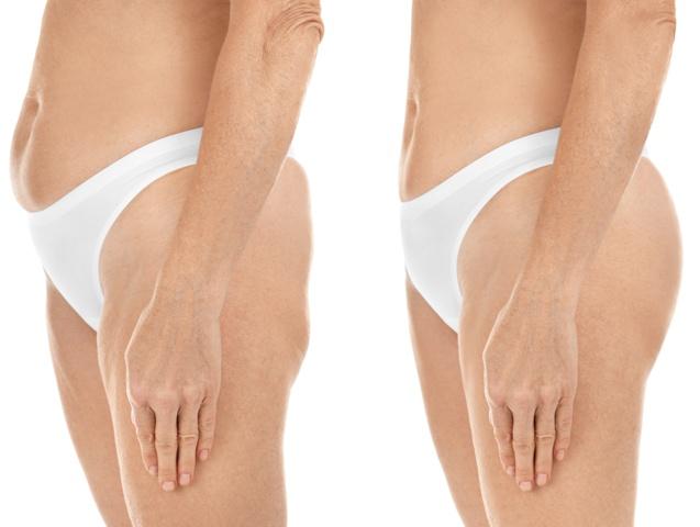 Vorher-Nachher-Ergebnis der Sorisa Impact Ultraschall Kavitation, Figurformung mit Ultraschall Kavitation, Fettabbau, Fettreduktion, Fettentfernung, Fett weg mit Ultraschall, Figurkorrektur und Umfangreduktion, Cellulite- und Bindegewebsstraffung, Körperstraffung, Anti-Cellulite Behandlung, Orangenhaut, Straffung, schlaffe Haut nach Schwangerschaft, Bodyforming, Behandlungsmöglichkeiten bei Sphinx Design Kosmetikstudio Simone Burghard in Busswil bei Wil.